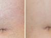 abdomen-antes-y-despues