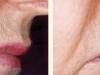 bigote-antes-y-despues