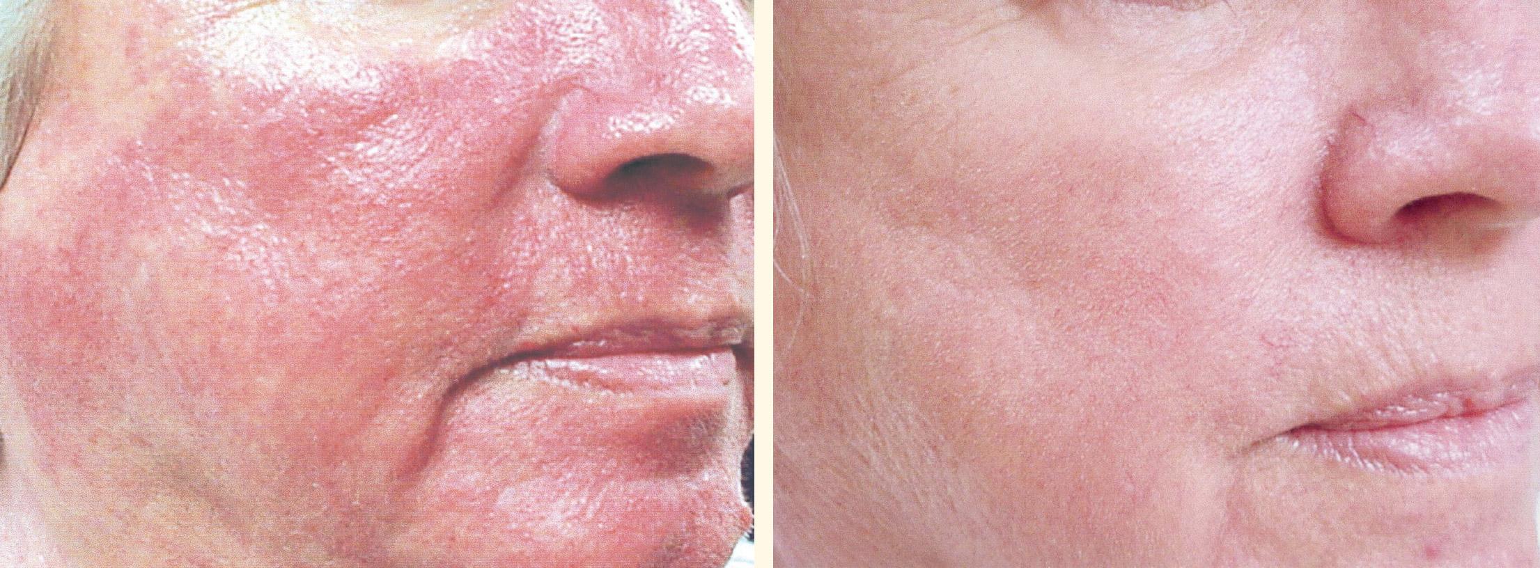 La tromboflebitis crónica de las venas profundas de las extremidades inferiores el tratamiento
