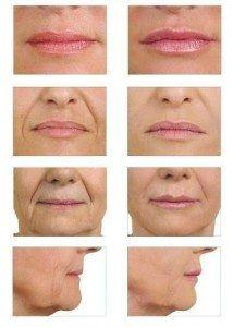 acido hialuronico labios malaga